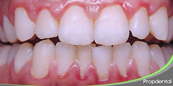 factores inductores de la gingivitis