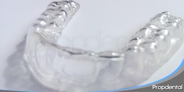 la importancia de utilizar retenedores de ortodoncia