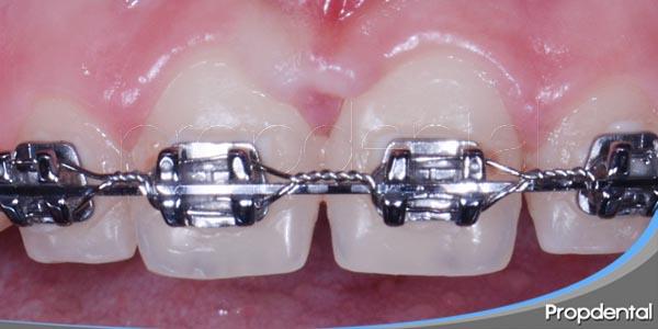 la ortodoncia no es una cuestión de edad
