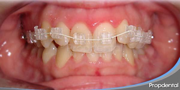 la ortodoncia y sus múltiples aplicaciones