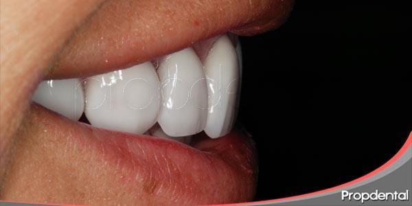 mejora tu sonrisa con la odontología estética
