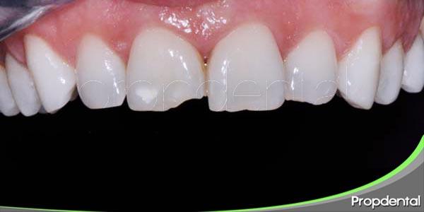 prevención de lesiones alveolo dentarias