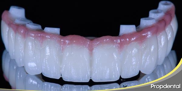 prótesis dentales para recuperar la sonrisa