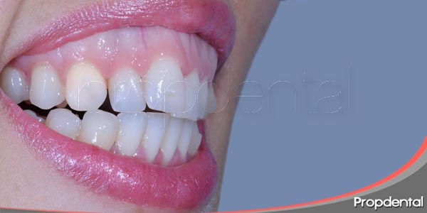 que causa la sonrisa gingival