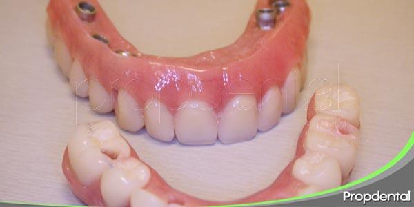rehabilitar la sonrisa con resinas compuestas