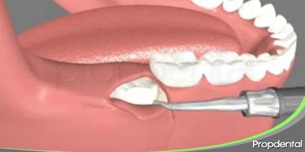 complicaciones en exodoncias del tercer molar