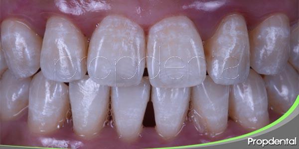 consecuencias de la fluorosis dental