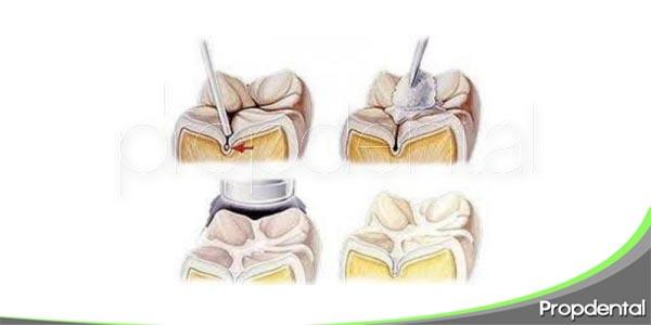 funcionalidad de los selladores dentales