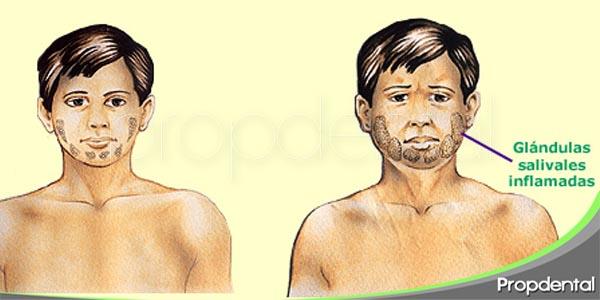 inflamaciones glandulares