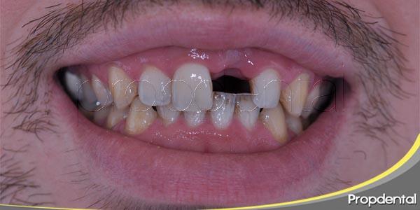 la importancia de reponer un diente perdido