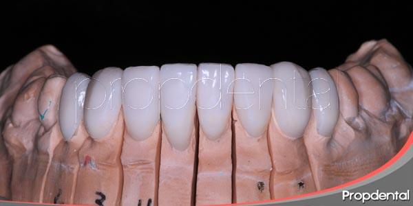 preguntas frecuentes sobre las carillas dentales