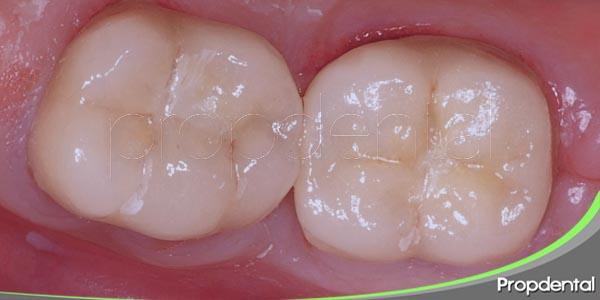 proceso de colocación de una corona dental