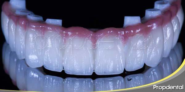 qué puedes esperar de un tratamiento con implantes dentales