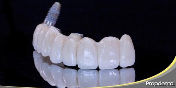 respuesta del hueso ante la colocación de un implante
