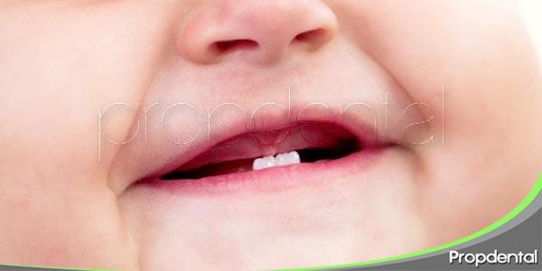 retraso en la erupción de los dientes de leche