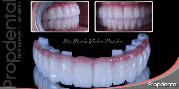 tipos de restauraciones con implantes