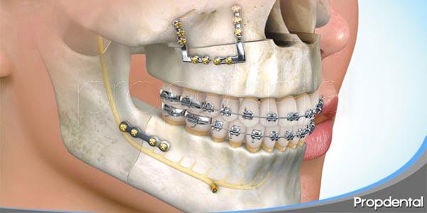 todo sobre la cirugía de la mandibula