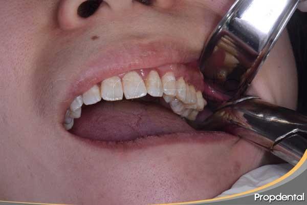 Dolor tratamientos dentales