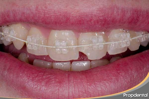 Preguntas frecuentes ortodoncia