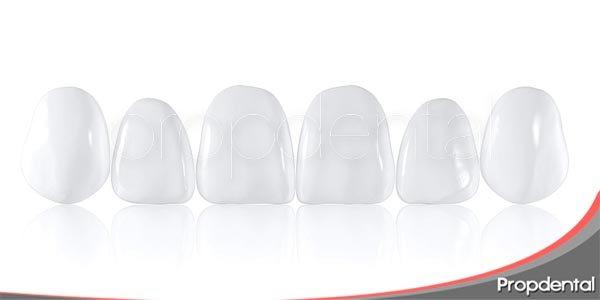 características de las carillas dentales componeer