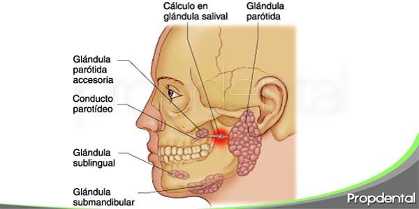 causas y síntomas de las piedras en las glándulas salivales