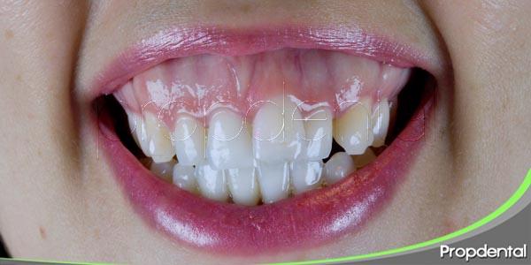 como solucionar la sonrisa gingival
