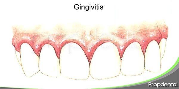 factores que aumentan el riesgo de padecer gingivitis