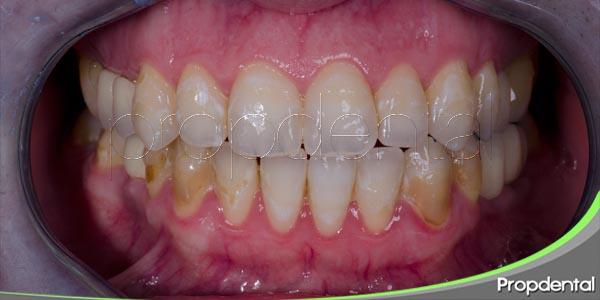 hábitos que hacen posible el desarrollo de la placa dental