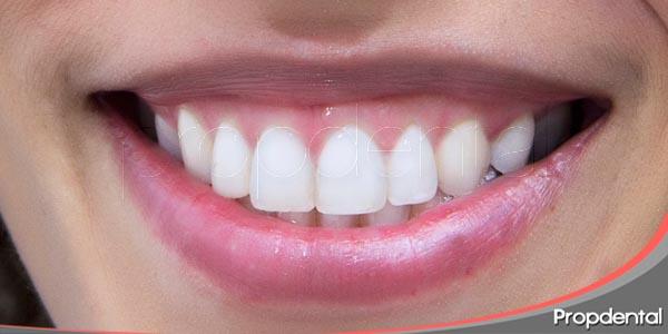 soluciones estéticas ante diferente situaciones dentales