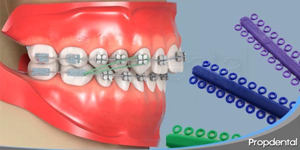 uso de elásticos en un proceso de ortodoncia