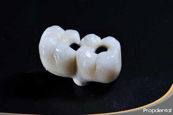 Razones requieren coronas dentales