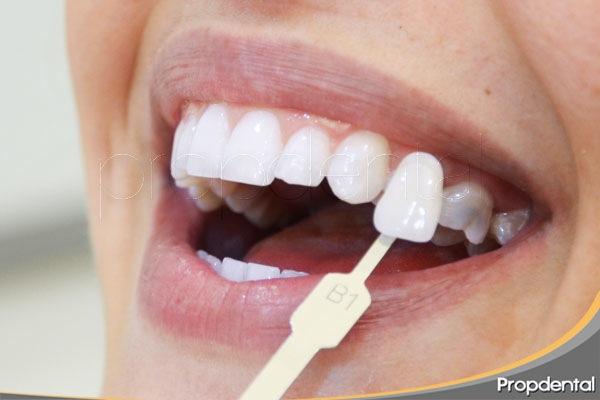 Soluciones dientes descoloridos