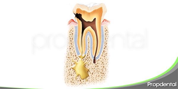 características de la periodontitis apical
