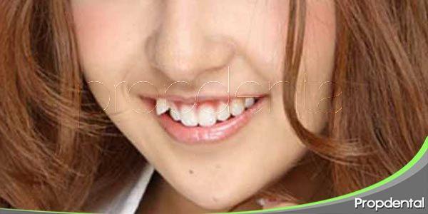 características de los dientes yaeba