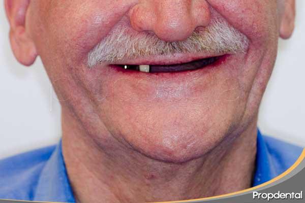 consecuencias perdidas piezas dentales