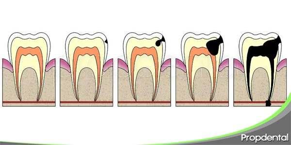 consejos de prevención de la caries dental