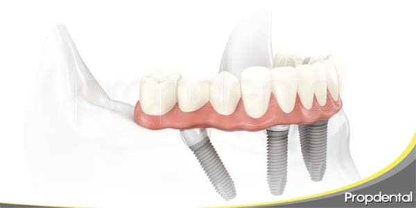 dentadura con implantes nobel biocare