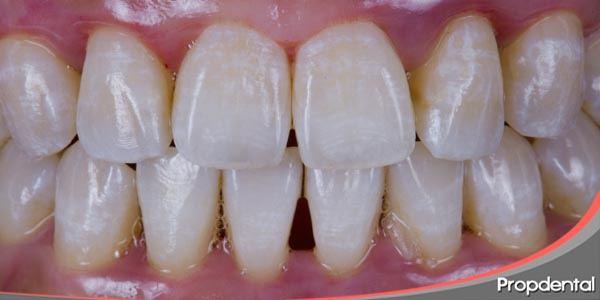 dientes con manchas
