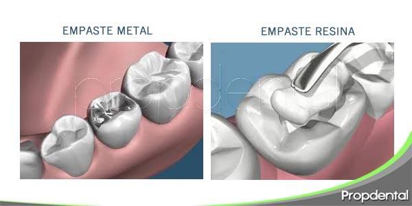 diferencia entre un empaste metálico y uno de resina