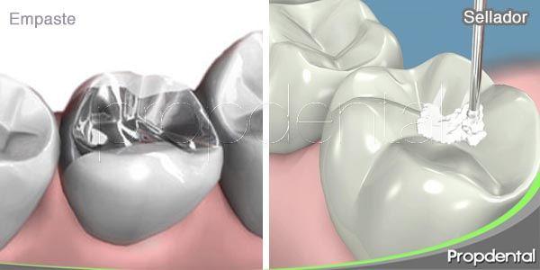 diferencias entre el empaste y el sellador dental