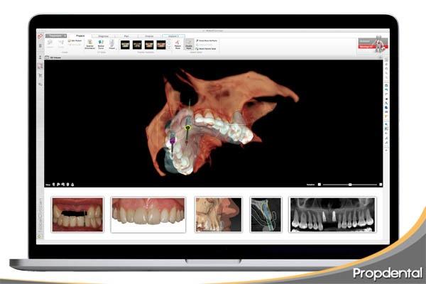 diseño digital sonrisas en intervenciones estéticas