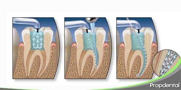 endodoncia: procedimiento y contraindicaciones
