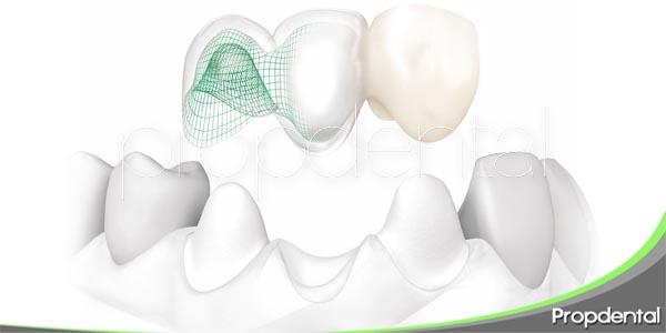 funcionamiento de los puentes dentales