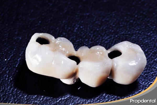 funcionamiento de un puente dental