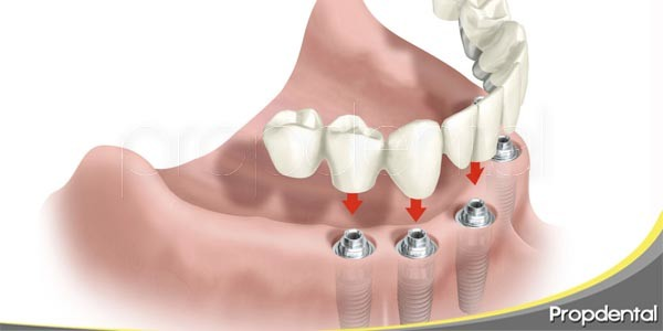 implantes dentales carga inmediata vs carga tradicional
