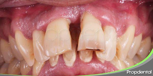 las anormalidades de nuestros dientes