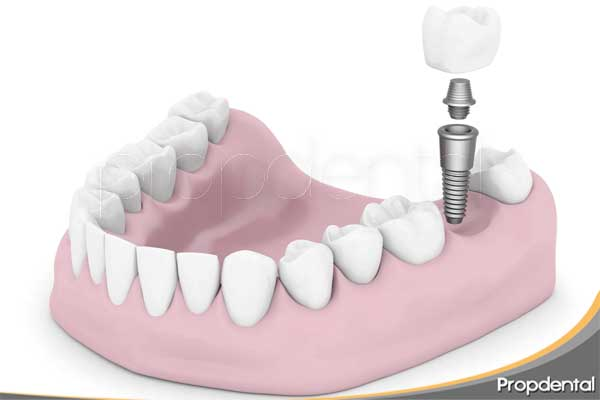 paso colocación implante dental