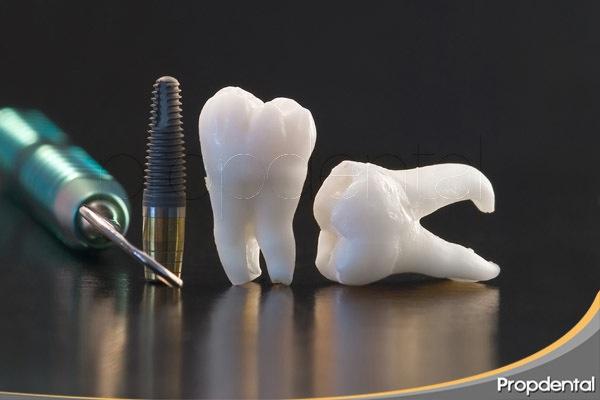 posibles complicaciones implantes dentales