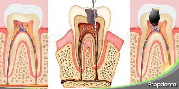 preguntas frecuentes acerca de la endodoncia