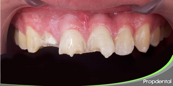 rotura de un diente